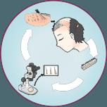 FUT hair transplant in indore