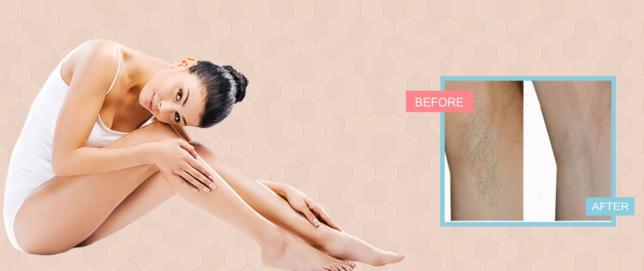 laser hair removal in bhopal